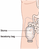 Ileostomy/Colostomy