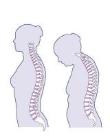 Osteopenia/Osteoporosis